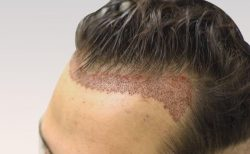 Best Hair Transplant in Hyderabad