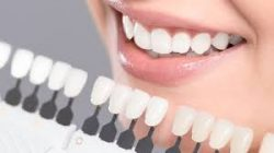 Have shiny teeth with laser teeth whitening