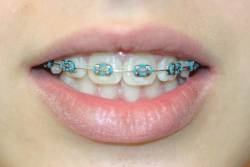 Best Orthodontist For Braces Near Me