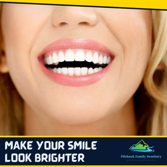 Maintain your Smile Beautiful and White