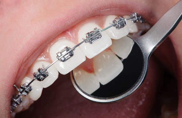What Are The Best Braces Colors?