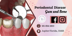 Treatment for Healthy Gums