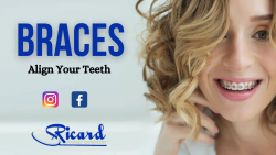 Solutions to Teeth Alignment Problems