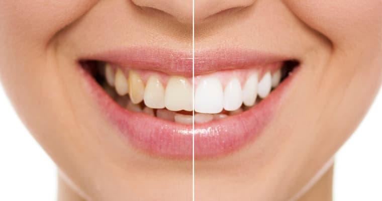 Teeth Whitening in the Virgin Islands
