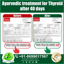 Ayurvedic Medicine for Thyroid