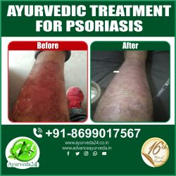Very effective Ayurveda treatment for Psoriasis