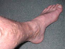 Varicose Veins Treatment Near Me