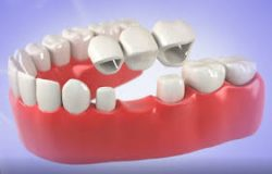 What Are Dental Bridges?