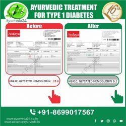 Type 1 Diabetes Treatment In Ayurveda