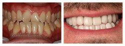 HOW TO GET THE BEST FIXED UPPER AND LOWER LINGUAL RETAINERS IN MIAMI?