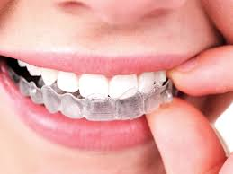 ABOUT INVISALIGN NEAR ME
