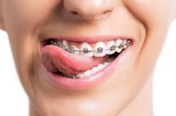 BEST MIAMI ORTHODONTIST NEAR ME: WHY GETTING BRACES AND WHERE TO GET BRACES?