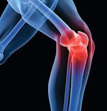 10 Ways a Knee Doctor in NY Helps You Lose Weight