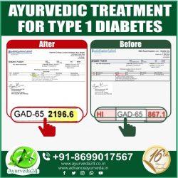 Ayurveda Treatment for Type 1 Diabetes