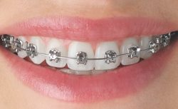 WHAT IS THE BEST OPTION OF BRACES FOR ADULTS?
