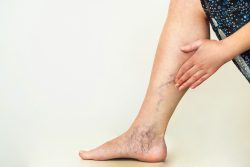 Varicose Vein Center Near Me