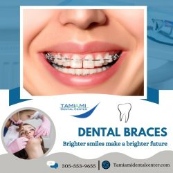 Get a Straight Tooth with Orthodontics