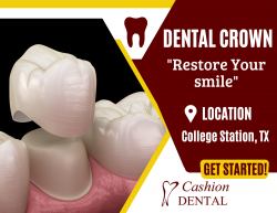 Improve Your Tooth Shape and Size
