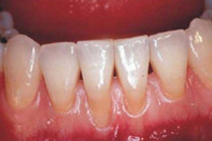 BLEEDING GUMS TIPS AND WHY TO VISIT A QUALIFIED ORTHODONTIST FAST.