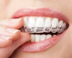 One of The Best Invisalign Dentist In Houston