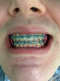 Why You Need Braces Near Me? | IVANOV Orthodontic Experts