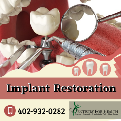 Implant Restorations to Retain Wellness