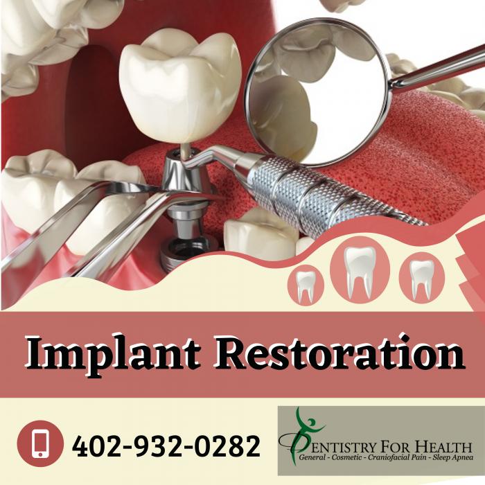 Implant Restorations to Retain Wellness