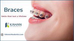 Orthodontic Braces to Straighten Your Teeth