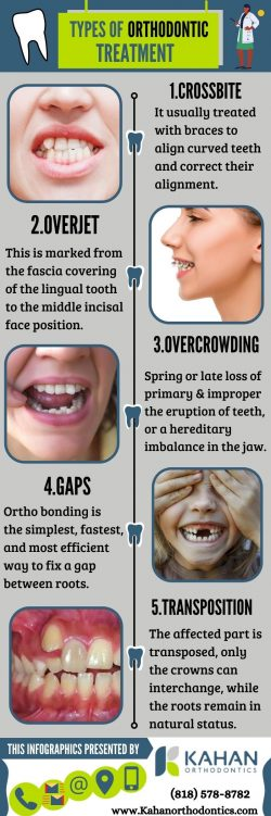 Orthodontic Treatment Options