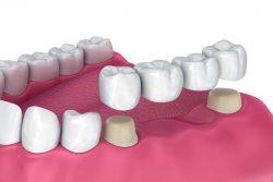 Dental Bridges in the Virgin Islands