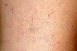 Spider vein varicose