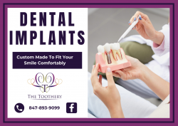 Straighten Your Teeth With Perfect Services