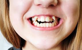 WHAT MAKES TEETH CROOKED, WHY THAT COULD BE AND WHAT CAN BE DONE?