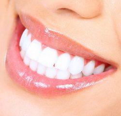 Teeth Polishingin Houston