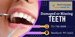 To Replace Missing Teeth in the Back of Your Mouth