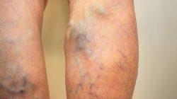 Find a top spider vein doctor in New Jersey