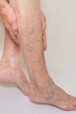 Who is an ideal vein specialist doctor? treat?