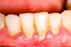 How to remove this yellow hard stuff on my teeth?