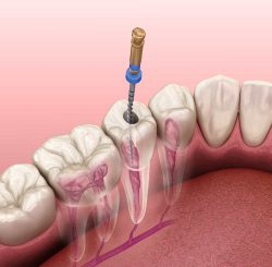 What is the cost of high-quality root canal treatment?