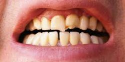 What to do when you've cracked a tooth?