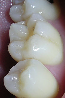 What are sealants and why are they done?