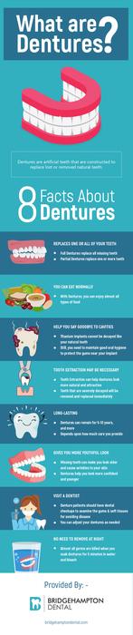 BridgeHampton Dental – Replace Your Missing Teeth with Dental Implants in Charlotte, NC