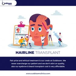Are you finding Hairline Transplant in Jaipur? -Outbloom Clinics