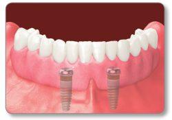 Virgin Island Dental Center | Implant Retained Dentures