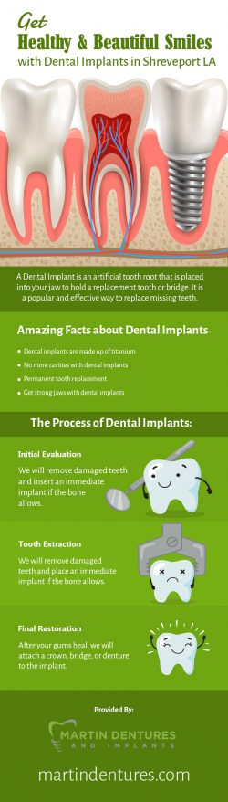 Martin Dentures and Implants – Replace your Missing Teeth with Dental Implants in Shrevepo ...