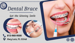 Straighten Teeth by Dental Braces