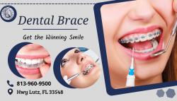 Straighten Teeth by Dental Braces