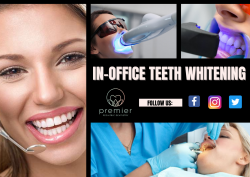 Perfect Whitening Treatment With Optimal Care