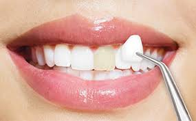 Cosmetic Dentistry at a dentist office near me