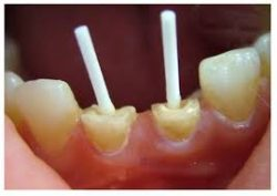 Top-Rated Emergency Root Canal Dentists in Houston